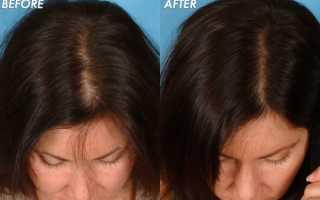 Как часто делать мезотерапию волос