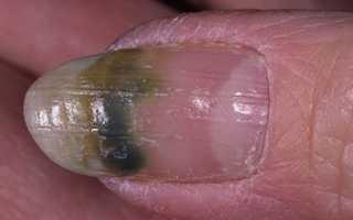 Сине зеленые ногти