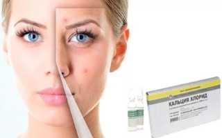 Кальция хлорид для лица пилинг как применять