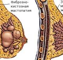 Мастопатия лечение народными средствами отзывы