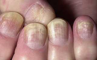 Грибок ногтей на руках лечение препараты