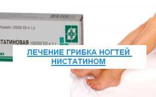 Нистатин от грибка ногтей отзывы