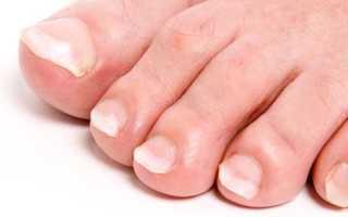 Почему белеют ногти на ногах