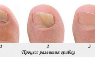 Как реально вылечить грибок ногтей