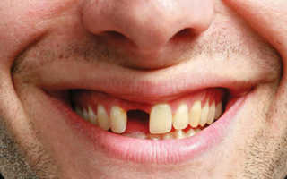 Сонник нет передних зубов